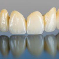 zobna-protetika