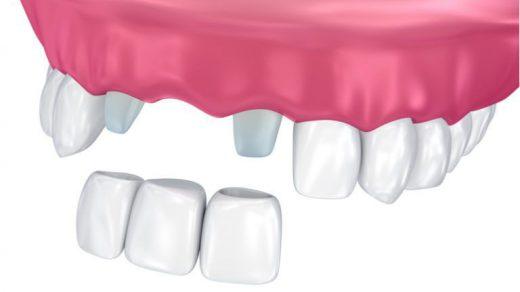 zobni mostiček